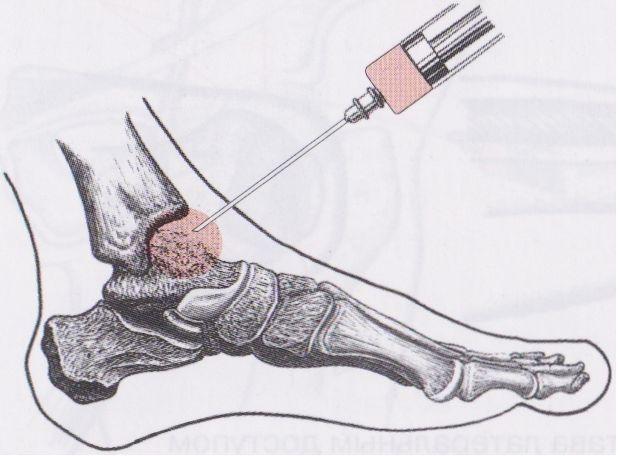 Paggamot ng rheumatoid arthritis at lunas sa sakit sa mga